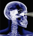 X-Ray of Skeleton with Electronic Eye and Brain    Stock Photo - Premium Rights-Managed, Artist: Philip Rostron, Code: 700-00049353
