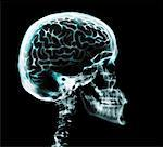 X-ray of brain in skull Stock Photo - Premium Royalty-Free, Artist: Stellar Stock, Code: 613-00303132