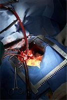 Open Heart Surgery    Stock Photo - Premium Rights-Managednull, Code: 700-01716548
