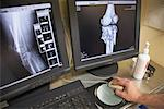 Doctor Looking at X-rays on Computer    Stock Photo - Premium Rights-Managed, Artist: Mike Randolph, Code: 700-02080265