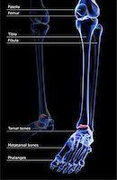 The bones of the leg Stock Photo - Premium Royalty-Freenull, Code: 671-02095030