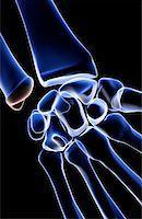 The bones of the wrist Stock Photo - Premium Royalty-Freenull, Code: 671-02097142