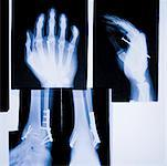 X-Rays of Hands and Ankles