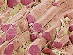 Skeletal muscle fibres, coloured scanning electron micrograph (SEM). Endomysial connective tissue is yellow. Magnification: x300 when printed at 10 centimetres wide. Stock Photo - Premium Royalty-Free, Artist: Cultura RM, Code: 679-02681771