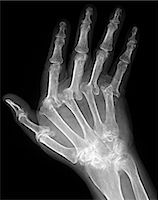 Arthritic hand. X-ray of the hand of a patient with severe rheumatoid arthritis in all of their fingers. The thumb is at left. This is polyarthritis, which means that more than five joints are affected. Rheumatoid arthritis is an autoimmune disorder, where the immune system attacks the body's own tissues, causing progressive joint and cartilage destruction. As the cartilage is worn away, new bone Stock Photo - Premium Royalty-Freenull, Code: 679-02682328