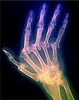 Arthritic hand. Coloured X-ray of the hand of a patient with severe rheumatoid arthritis in all of their fingers. The thumb is at left. This is polyarthritis, which means that more than five joints are affected. Rheumatoid arthritis is an autoimmune disorder, where the immune system attacks the body's own tissues, causing progressive joint and cartilage destruction. As the cartilage is worn away, Stock Photo - Premium Royalty-Freenull, Code: 679-02682329