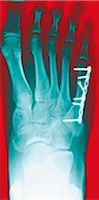 Pinned foot bone fracture. Coloured X-rays of the right foot, showing a metal plate and screws (white) in the foot bone beneath the little toe (upper right). Stock Photo - Premium Royalty-Freenull, Code: 679-02684380