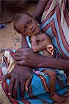 Emaciated baby in refugee camp in 1992, Mogadishu, Somalia, Africa                                                                                                                                       Stock Photo - Premium Rights-Managed, Artist: Robert Harding Images, Code: 841-02947080