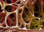 Bone tissue. Coloured scanning electron micrograph (SEM) of cancellous (spongy) bone. This tissue, found in the interior of bones, is characterised by a honeycomb arrangement of trabeculae (columns) and spaces. This honeycomb structure provides support and strength to the bone. Magnification: x 15 when printed 10 centimetres wide. Stock Photo - Premium Royalty-Free, Artist: Cultura RM, Code: 679-03298429