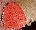 Foetal vein. Coloured scanning electron micrograph (SEM) of a section through a foetal vein filled with red blood cells (erythrocytes, red). Veins transport blood back to the heart. The beige tissue surrounding the vein is connective tissue. Magnification: x250 when printed 10 centimetres wide. Stock Photo - Premium Royalty-Free, Artist: Cultura RM, Code: 679-03298434