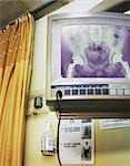 X-Ray on Monitor in Hospital Room Stock Photo - Premium Rights-Managed, Artist: Andrew Kolb, Code: 700-03458208