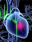 Heart attack and ECG trace Stock Photo - Premium Royalty-Free, Artist: IIC, Code: 679-04249829