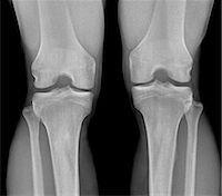 Normal knees, X-ray Stock Photo - Premium Royalty-Freenull, Code: 679-04249954