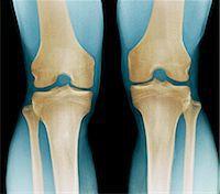 Normal knees, X-ray Stock Photo - Premium Royalty-Freenull, Code: 679-04249955