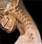 Normal flexed neck, X-ray