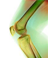 Normal knee, X-ray Stock Photo - Premium Royalty-Freenull, Code: 679-04250052