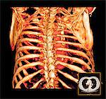 Rib cage and heart, 3D CT scan
