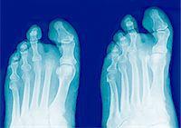 Amputated toe, X-rays Stock Photo - Premium Royalty-Freenull, Code: 679-04251384