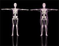 3D renders of two female skeletons one slim and one overweight Stock Photo - Royalty-Freenull, Code: 400-04280635