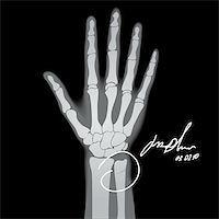 Vector illustration of brooken hand. X-ray. Stock Photo - Royalty-Freenull, Code: 400-05276797