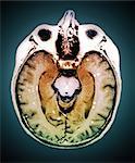Secondary brain cancer, MRI scan