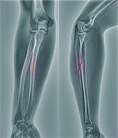 Broken arm, X-ray Stock Photo - Premium Royalty-Freenull, Code: 679-05797301