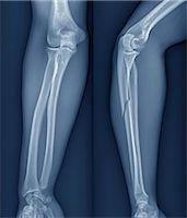 Broken arm, X-ray Stock Photo - Premium Royalty-Freenull, Code: 679-05797302