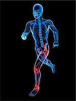 Joint pain, conceptual artwork Stock Photo - Premium Royalty-Freenull, Code: 679-05798031