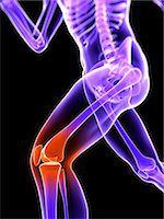 Knee pain, conceptual artwork Stock Photo - Premium Royalty-Freenull, Code: 679-05798034