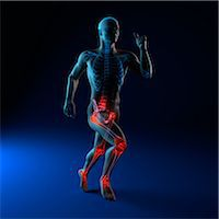 sprint - Running injuries, conceptual artwork Stock Photo - Premium Royalty-Freenull, Code: 679-05798066