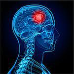 Brain cancer, artwork Stock Photo - Premium Royalty-Free, Artist: Science Faction, Code: 679-05798905