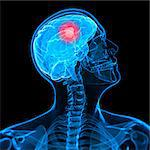 Brain cancer, artwork Stock Photo - Premium Royalty-Free, Artist: Science Faction, Code: 679-05798906