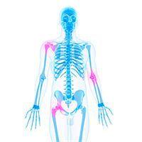 Joint pain, conceptual computer artwork. Stock Photo - Premium Royalty-Freenull, Code: 679-05995350