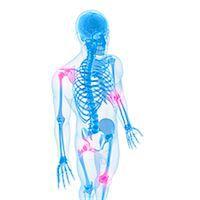 Joint pain, conceptual computer artwork. Stock Photo - Premium Royalty-Freenull, Code: 679-05995351