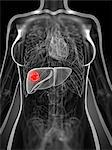 Liver cancer, computer artwork. Stock Photo - Premium Royalty-Free, Artist: CulturaRM, Code: 679-06198803