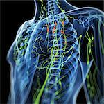 Inflamed lymph nodes, computer artwork. Stock Photo - Premium Royalty-Free, Artist: ableimages, Code: 679-06198839