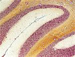 Cerebellum tissue. Light micrograph of a section through the cerebellum of the brain. This is the grey matter of the cerebellum. It consists of two layers; the molecular layer (dark brown) and the granular layer (light brown). Purkinje cells (white), a type of neuron (nerve cell), form the junction between the two layers. Purkinje cells consist of a large flask-shaped cell body with many branching Stock Photo - Premium Royalty-Free, Artist: Cultura RM, Code: 679-06199142