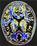 MRI scan of brain Stock Photo - Premium Royalty-Free, Artist: Robert Harding Images, Code: 6114-06605123