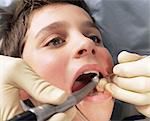 Boy with dentist's drill in his mouth Stock Photo - Premium Royalty-Free, Artist: Uwe Umstätter, Code: 6114-06605171