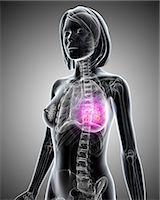 Breast cancer, computer artwork. Stock Photo - Premium Royalty-Freenull, Code: 679-06711383