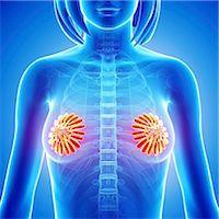 Breast anatomy, computer artwork. Stock Photo - Premium Royalty-Freenull, Code: 679-06711503
