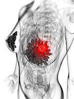 Breast cancer, computer artwork. Stock Photo - Premium Royalty-Freenull, Code: 679-06754247