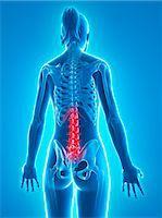 spinal column - Back pain, conceptual artwork Stock Photo - Premium Royalty-Freenull, Code: 679-06754915