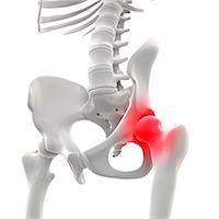 spinal column - Hip pain, conceptual artwork Stock Photo - Premium Royalty-Freenull, Code: 679-06755001