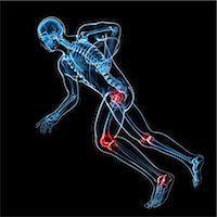 Sports injuries, conceptual artwork Stock Photo - Premium Royalty-Freenull, Code: 679-06755283