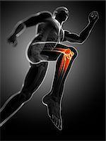 Knee pain, conceptual computer artwork. Stock Photo - Premium Royalty-Freenull, Code: 679-06780290