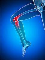 Knee pain, conceptual computer artwork. Stock Photo - Premium Royalty-Freenull, Code: 679-06780344