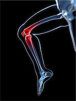Knee pain, conceptual computer artwork. Stock Photo - Premium Royalty-Freenull, Code: 679-06780346