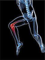 Knee pain, conceptual computer artwork. Stock Photo - Premium Royalty-Freenull, Code: 679-06780347