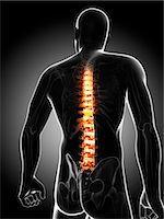 spinal column - Back pain, conceptual computer artwork. Stock Photo - Premium Royalty-Freenull, Code: 679-06780519